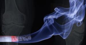 Fumaça de cigarro piora a qualidade do tecido ósseo, mostra estudo da Faculdade de Medicina
