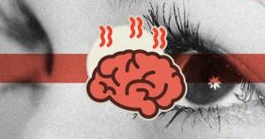 Blefaroespasmo, transtorno neurológico raro que atinge mais as mulheres