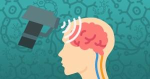 """Estimulação magnética transcraniana """"theta-burst"""" é ineficaz para tratar depressão mista"""