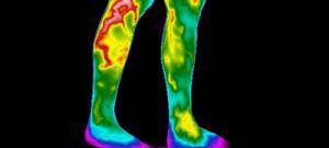Saiba mais sobre varizes no Saúde Sem Complicações