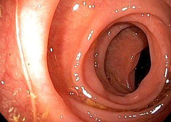 Esôfago numa endoscopia   Foto: Divulgação