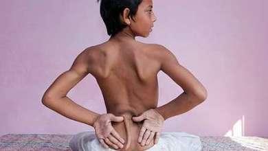 Photo of Mundo: Indiano nasce com 'rabo' nas costas e é cultuado como deus