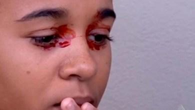 Photo of Mistério: Exames não indicam causa de sangue em olhos de garota baiana