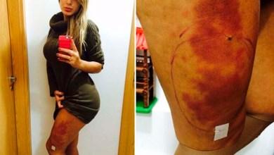 Photo of Andressa Urach passa por nova cirurgia e segue em estado grave