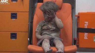 Photo of Imagem de criança ferida após ataque em Aleppo choca o mundo
