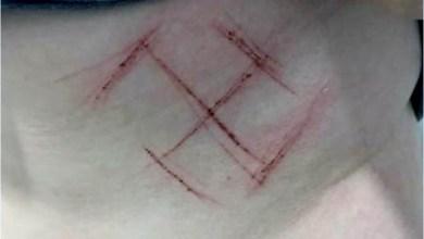 Photo of #Brasil: Suástica em jovem foi automutilação ou teve consentimento, diz laudo