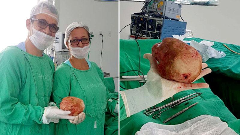 Chapada: Médicos retiram 'pedra' com mais de um quilo da bexiga de paciente em Jacobina