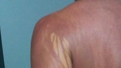 Photo of #Bahia: Descartada intoxicação por óleo em turista de Minas Gerais que apresentou manchas no corpo