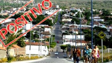Photo of #Chapada: Itaberaba registra 16 novos casos de covid-19 em 24h e a taxa de ocupação de UTIs cai para 95%