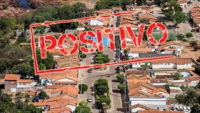 Photo of #Chapada: Itaetê confirma o quinto óbito em decorrência da covid-19; duas pessoas estão com o vírus ativo