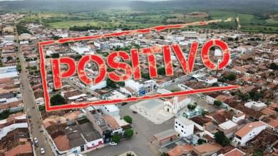 Photo of #Chapada: Com mais um caso positivo de covid, Utinga eleva número de pacientes ativos para nove