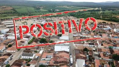 Photo of #Chapada: Utinga eleva número de pessoas contaminadas por covid para 55 após notificação de mais três novos casos