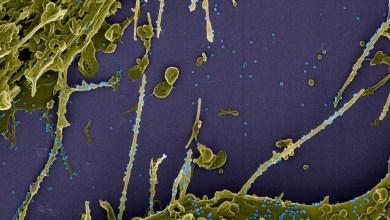 Photo of #Mundo: Estudo mostra que anticorpos contra a covid-19 duram pelo menos sete meses