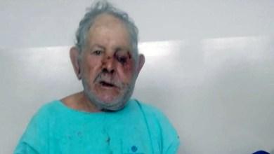 Photo of #Chapada: Assaltantes invadem casa de idosos em Piatã; homem de 78 anos teve traumatismo craniano