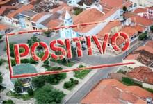 Photo of #Chapada: Nova variante do coronavírus é identificada em Mairi; município tem quatro pacientes com vírus ativo