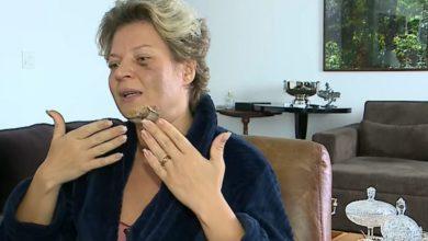 Photo of #Brasil: Remédio utilizado pela deputada Joice Hasselmann pode causar perda de memória