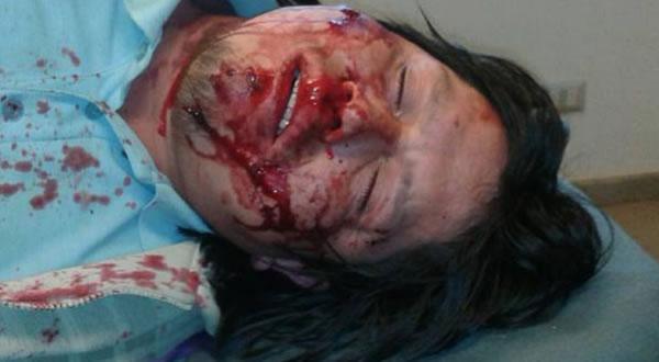 Así quedó José Coña Linco tras ser baleado por efectivos policiales el pasado 29 de septiembre.
