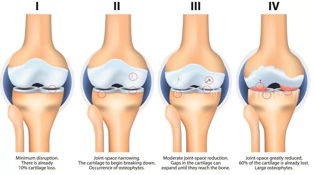 Osteoarthritis Condition