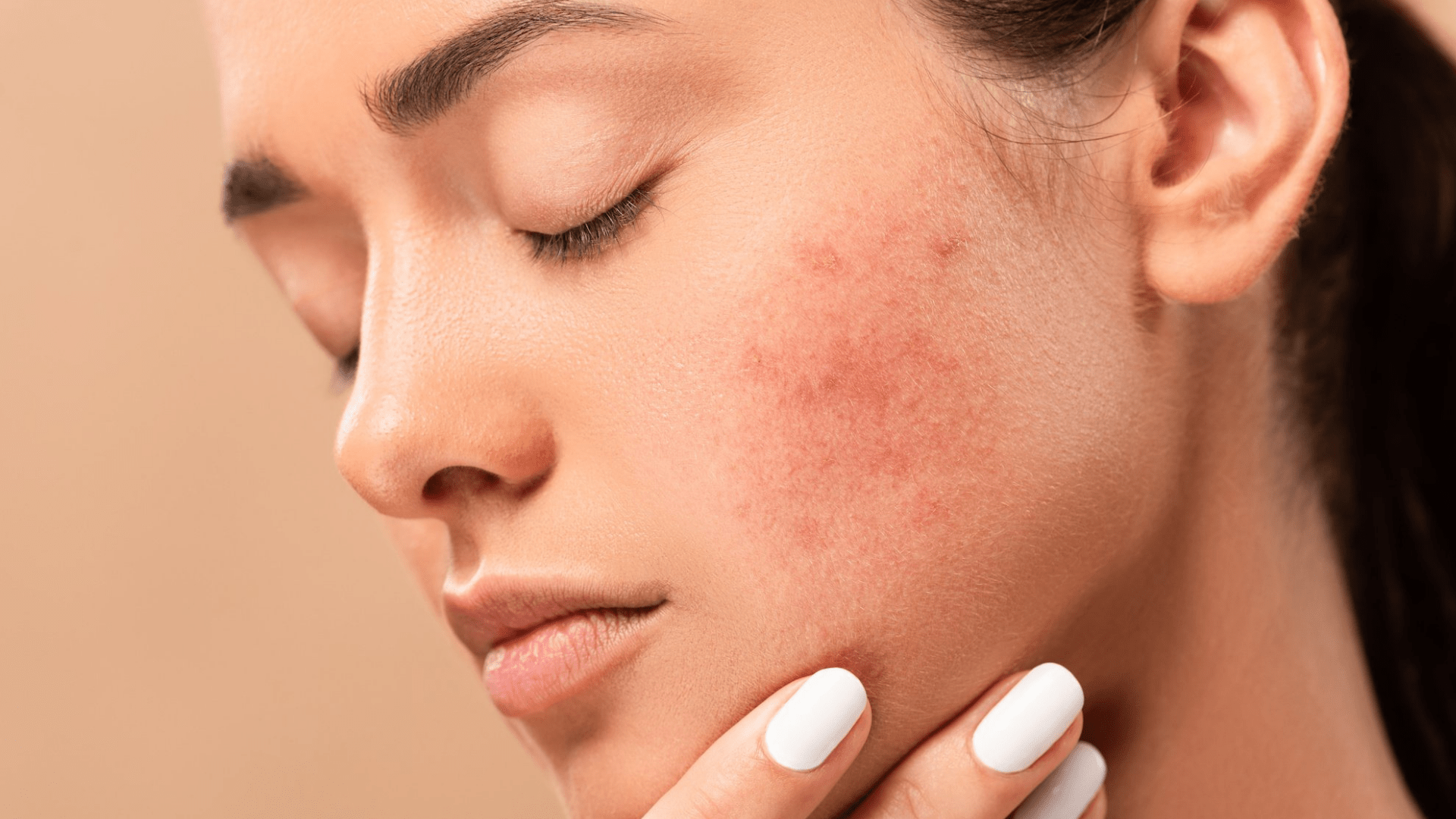 How to Get Rid of Acne Scars Naturally in Simple Steps