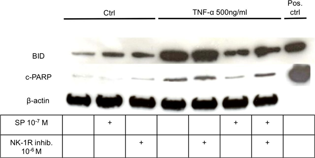 Best Substance P Reduces Tnf Α Induced Apoptosis In Human With Pictures