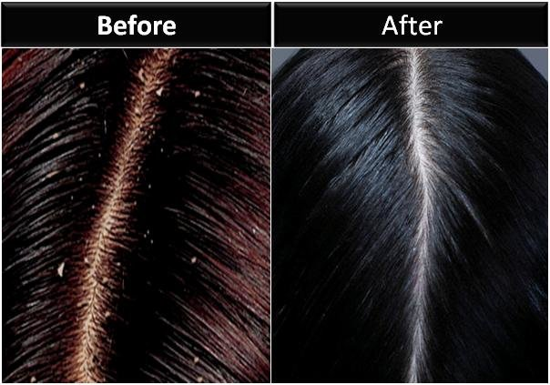 Free 10 Proven Ways To Get Rid Of Dandruff Permanently Wallpaper
