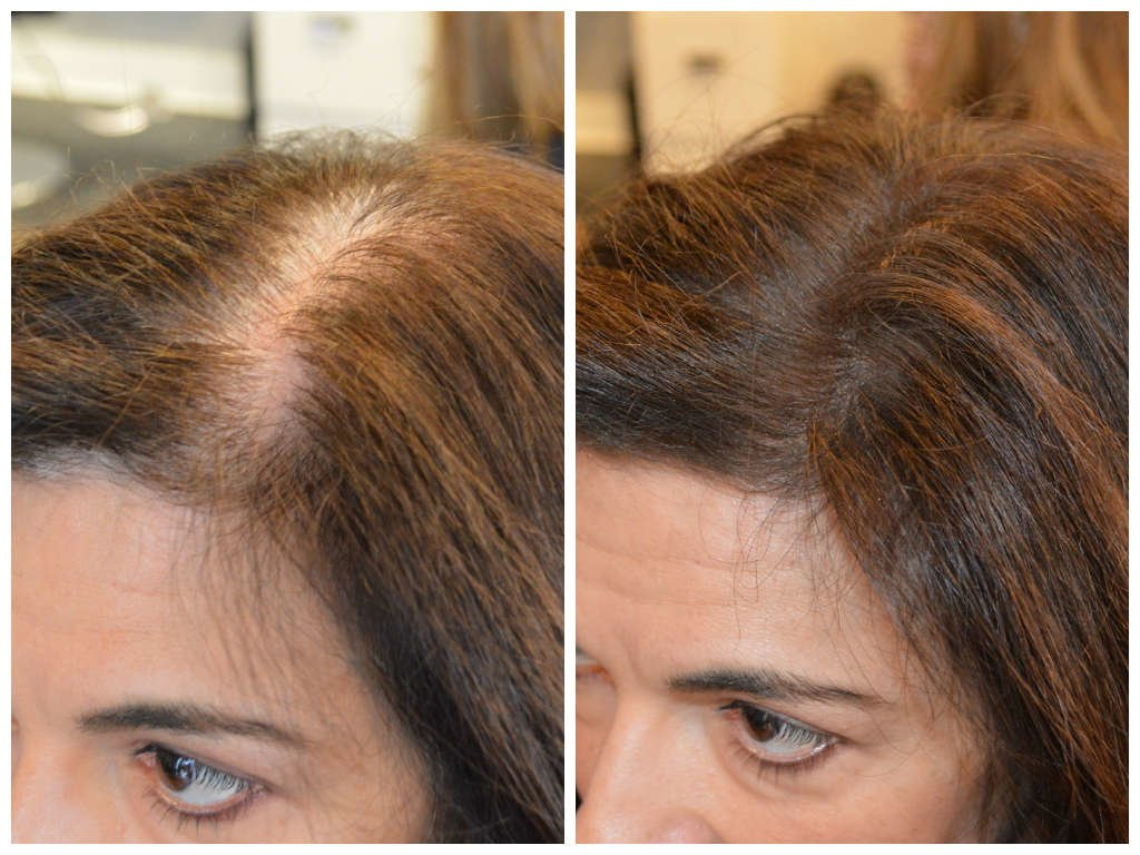 Free Instant Coverage Of Roots And Thinning Patches – New Wallpaper