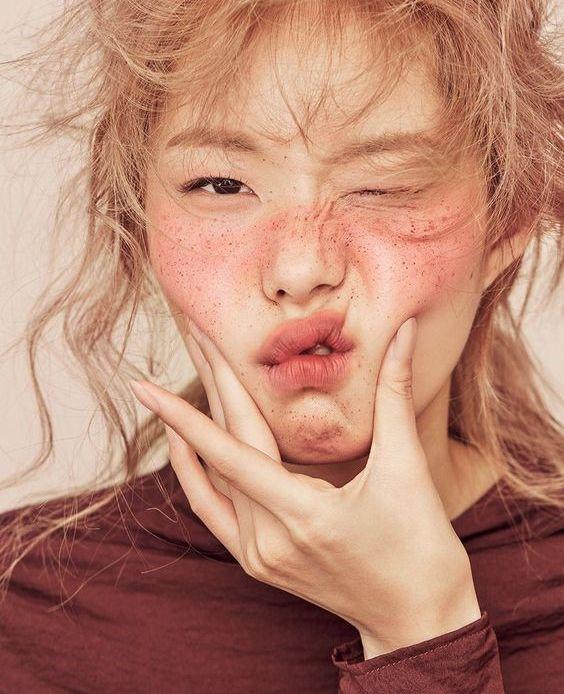 4 Beauty Flaws yang Tetap Membuat Kamu Sempurna