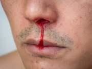 Nase gebrochen (Symbolbild: shutterstock.com7 Von sabza)
