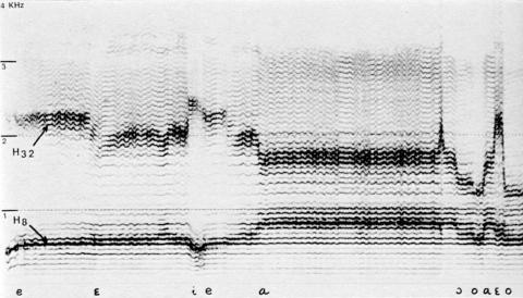 Fig. 10: Reprise du chant de fig. 9. Même mélodie d'harmoniques, mais différence de la deuxième zone en raison de la différence des voyelles. Pour les voyelles antérieures i, e, , la deuxième zone de mélodie d'harmoniques est plus haute la voyelle e au début de la reprise (fig. 10) H8 — H32 (= double octave); la voyelle i H9 — large bande de H28 à 30.