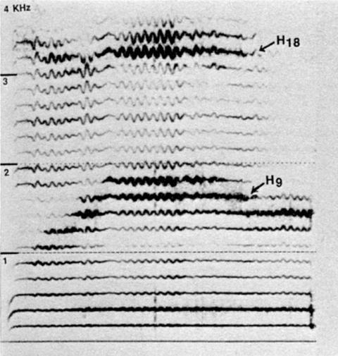 Fig. 29: Mongolie. Probablement style tzeedznii khöömii («khöömii de poitrine»), appelé dans le film Le chant des harmoniques par erreur bagalzuuriin khöömi, («khöömi de gorge»). Démonstration pour l'interview, par T. Ganbold.
