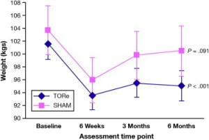Weight (kg) plotted by time, for patients that received TORe vs controls (sham).