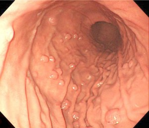 Endoscopic view of multiple fundic gland polyps in a patient taking proton-pump inhibitors.