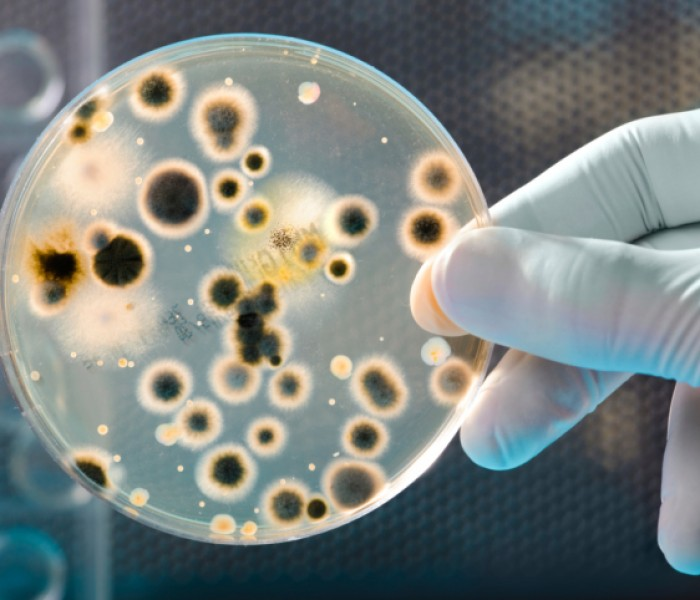 President Seeks Extra Funding to Fight Antibiotic-resistant Bacteria