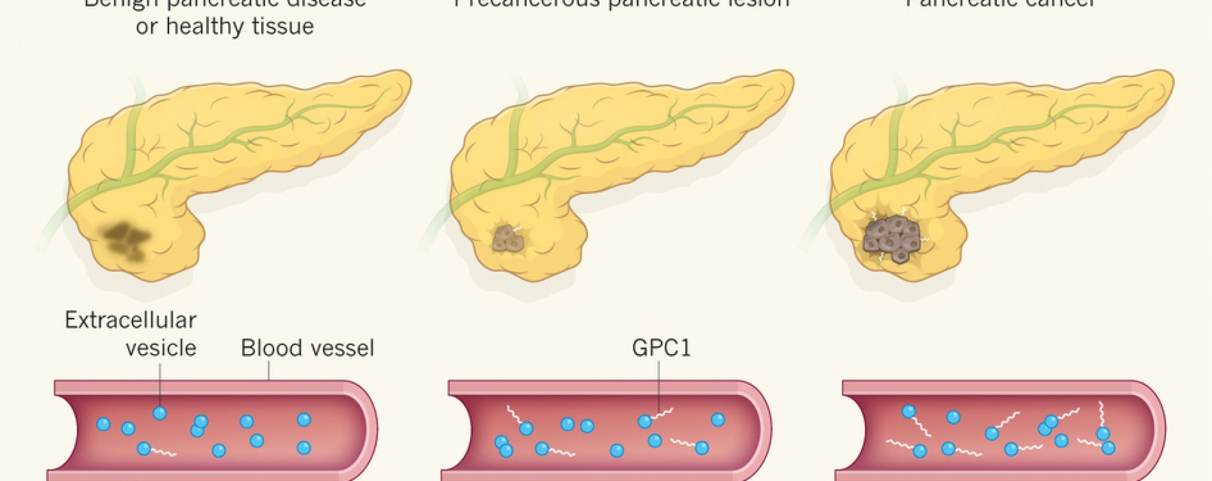 An Accurate Biomarker for Early-stage Pancreatic Cancer