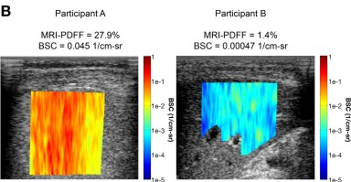 Qualitative color maps for participant with NAFLD (participant A: PDFF, 27.9%) and without (participant B: PDFF, 1.4%).