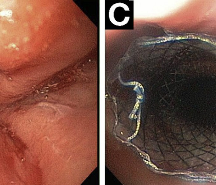 VIDEO: Endoscopic Management of Gastrointestinal Leaks and Fistulae