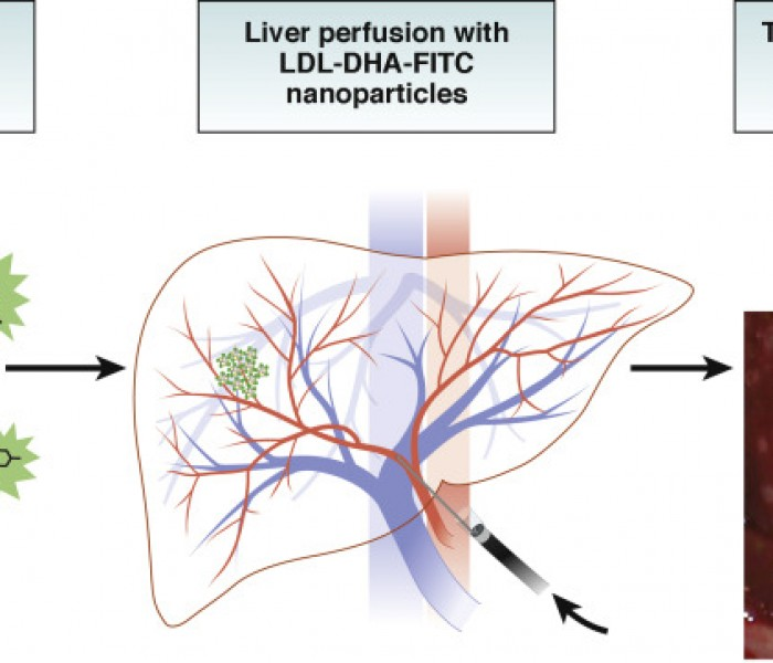 A Nanoparticle-based Approach to Selectively Target Hepatocellular Carcinomas