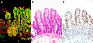 IgA anti-TG2 intestinal deposits (A, arrowheads), along with histologic (B) and immunohistochemical (C) analyses of intestinal tissue from a patient with potential celiac disease. Note the dense immunostaining for CD3, indicating abundant lymphocytic infiltrate and increased numbers of intraepithelial lymphocytes. Bar = 25 μm