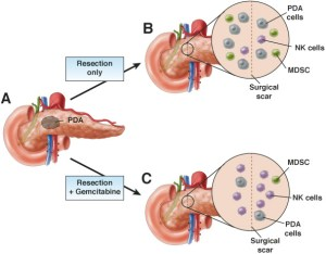 Mice with single nodule tumors (A) after R0 surgical resection received adjuvant gemcitabine (C) or vehicle (B). The tumors exposed to gemcitabine contained fewer myeloid-derived suppressor cells (MDSCs) and more NK cells. These findings could account for the observation in clinical trials gemcitabine reduces local tumor recurrence.