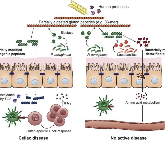 How Could the Intestinal Microbiota Contribute to Celiac Disease?