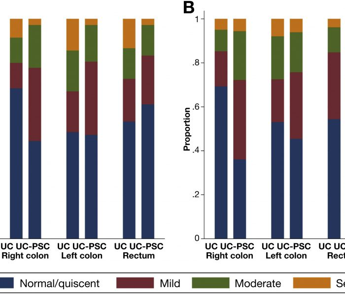 Are Patients With PSC and Colitis More likely to Have Subclinical Inflammation?