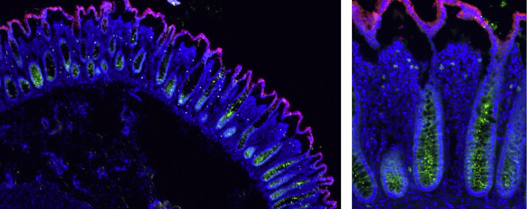Model: Microfabricated Crypt Scaffolds for Studying Human Colon Stem Cells