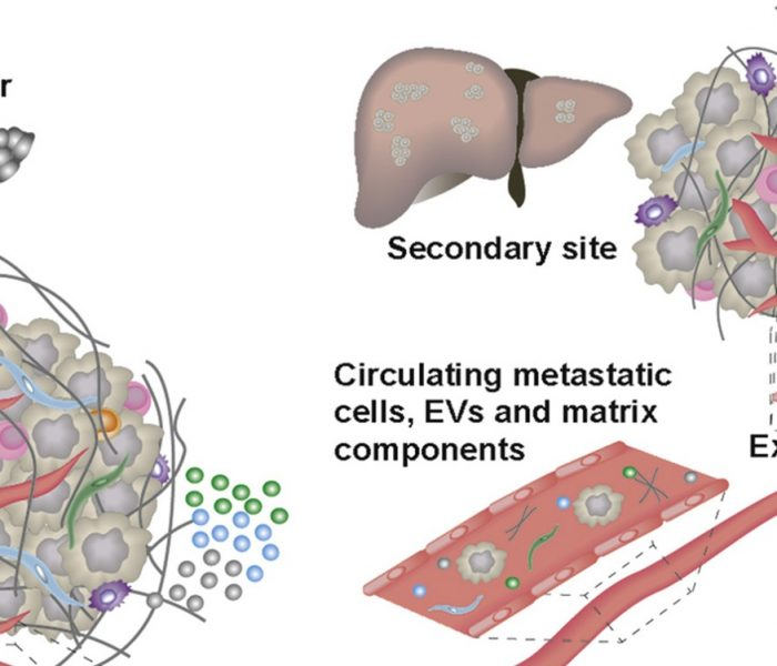 Review: How Does the Tumor Stroma Contribute to Pancreatic Cancer Progression, and Can We Stop It?