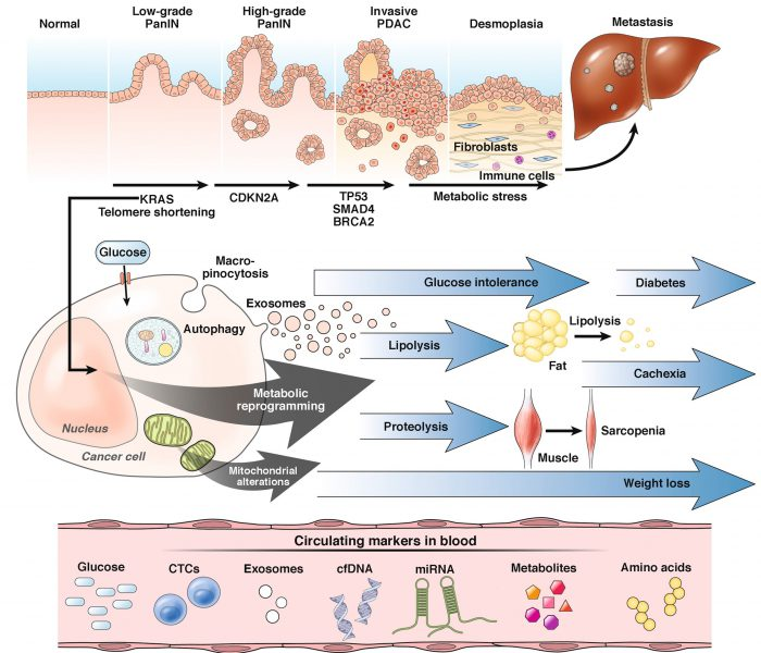 Hyperglycemia as a Marker for Early Detection of Pancreatic Cancer