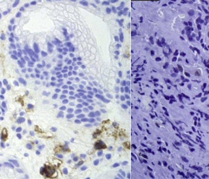 What do Endoscopies Find in Patients With COVID-19?