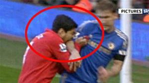 No es la primera vez que Luis Suárez muerde a un jugador.