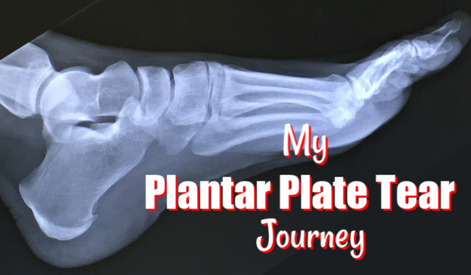 Partial Plantar Plate Tear: Injury Update, Timeline and FAQ