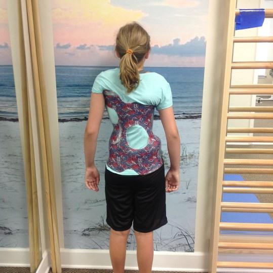 Pediatric patient wearing brace, back view.