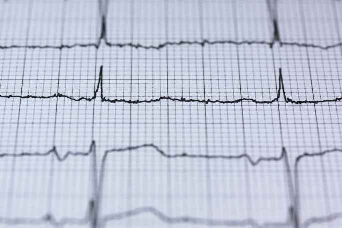 Heart monitor image