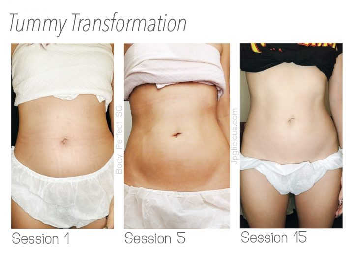 Inch Loss Journey with BodyPerfect